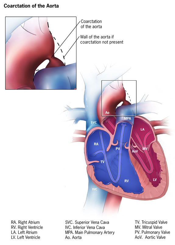 Facts about Coarctation of the Aorta | Congenital Heart ...