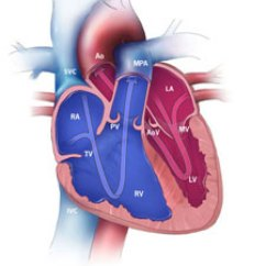 Human Anatomy Major Arteries Diagram Gm Parts Search Congenital Heart Defects - How The Works | Cdc