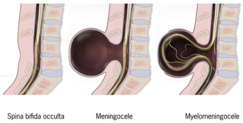 Types of spina bifida: Spina bifida occulta, meningocele, myelomeningocele