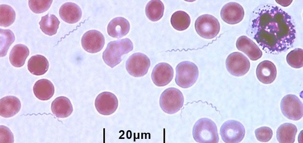 TBRF blood smear