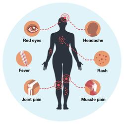 symptoms zika virus cdc