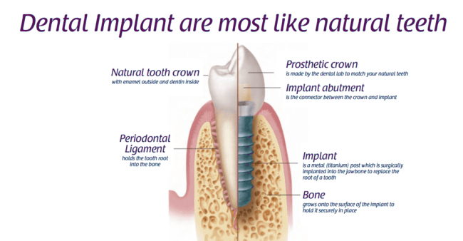 6 Checks before Dental Implant Surgery