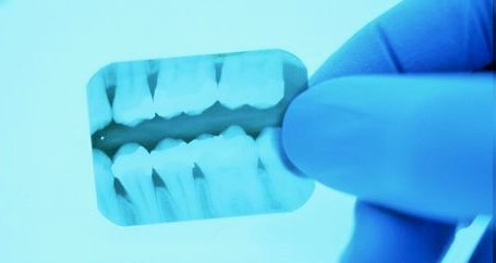 Dental X-ray @ CDIE