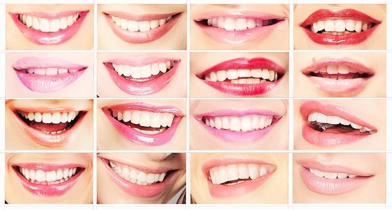 Smile Makeover Clinic Gurgaon