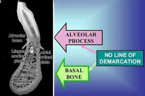 Basal and Alveolar Bone