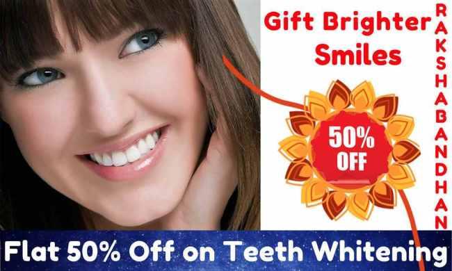 Teeth Whitening Offer in Gurgaon