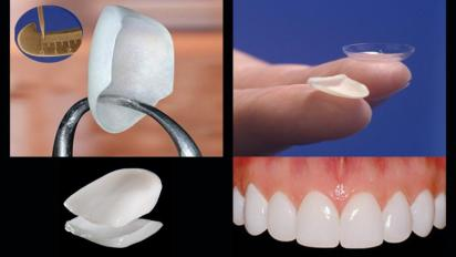 smile-makeover-with-porcelain-veneers