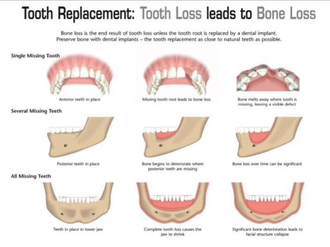 How Dental Implants Stop Jaw Bone Loss