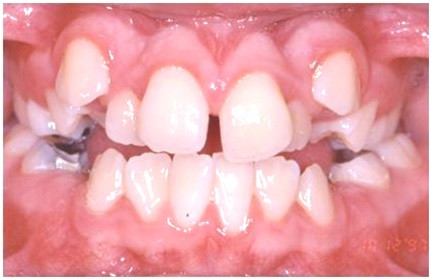 Diastema due rotated or misaligned teeth
