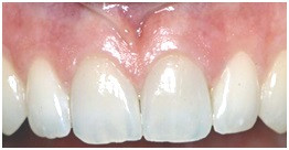 Diastema Closed After Esthetic Treatment