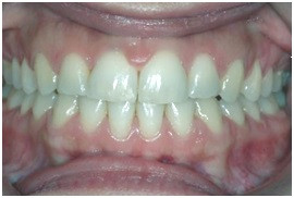 Diastema Closure After Treatment (Orthodontic)