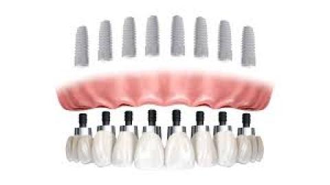All-on-8 Dental Implant System