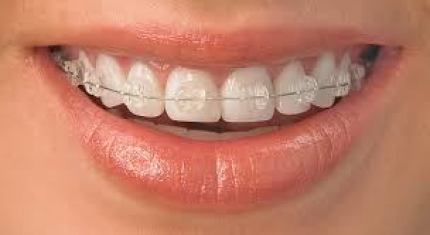 Ceramic Braces in Gurgaon