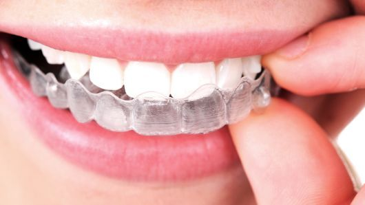 clear aligners in gurgaon