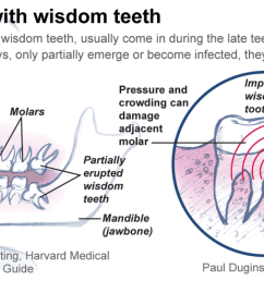 the third molars is commonly name as wisdom teeth this is usually the last four of 32 teeth to erupt surface in the mouth it appeared at the ages of 17  [ 1200 x 674 Pixel ]
