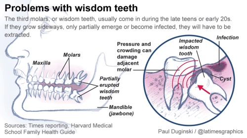 small resolution of the third molars is commonly name as wisdom teeth this is usually the last four of 32 teeth to erupt surface in the mouth it appeared at the ages of 17
