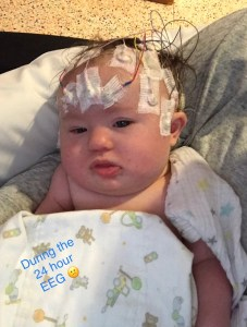 Infantile Spasms in Babies with Down Syndrome