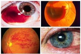 Resultado de imagen para urgencia oftalmologica
