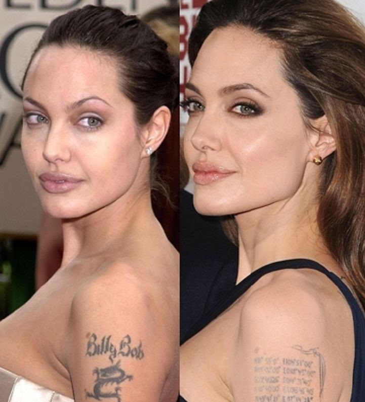 Angelina Jolie Mastectomy Before And After-8093