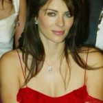 Elizabeth Hurley Plastic Surgery Before and After