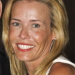 Chelsea Handler Plastic Surgery Before and After