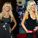 Kimberly Stewart Plastic Surgery Before And After