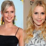 Claire Holt Plastic Surgery Before and After