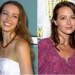 Amy Acker Plastic Surgery Before and After