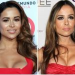 Zulay Henao Plastic Surgery Before and After
