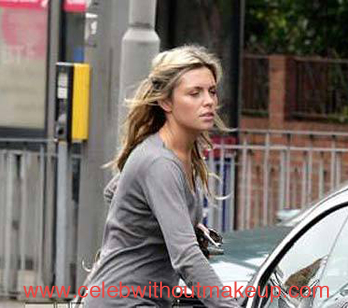 Abbey Clancy No Makeup On