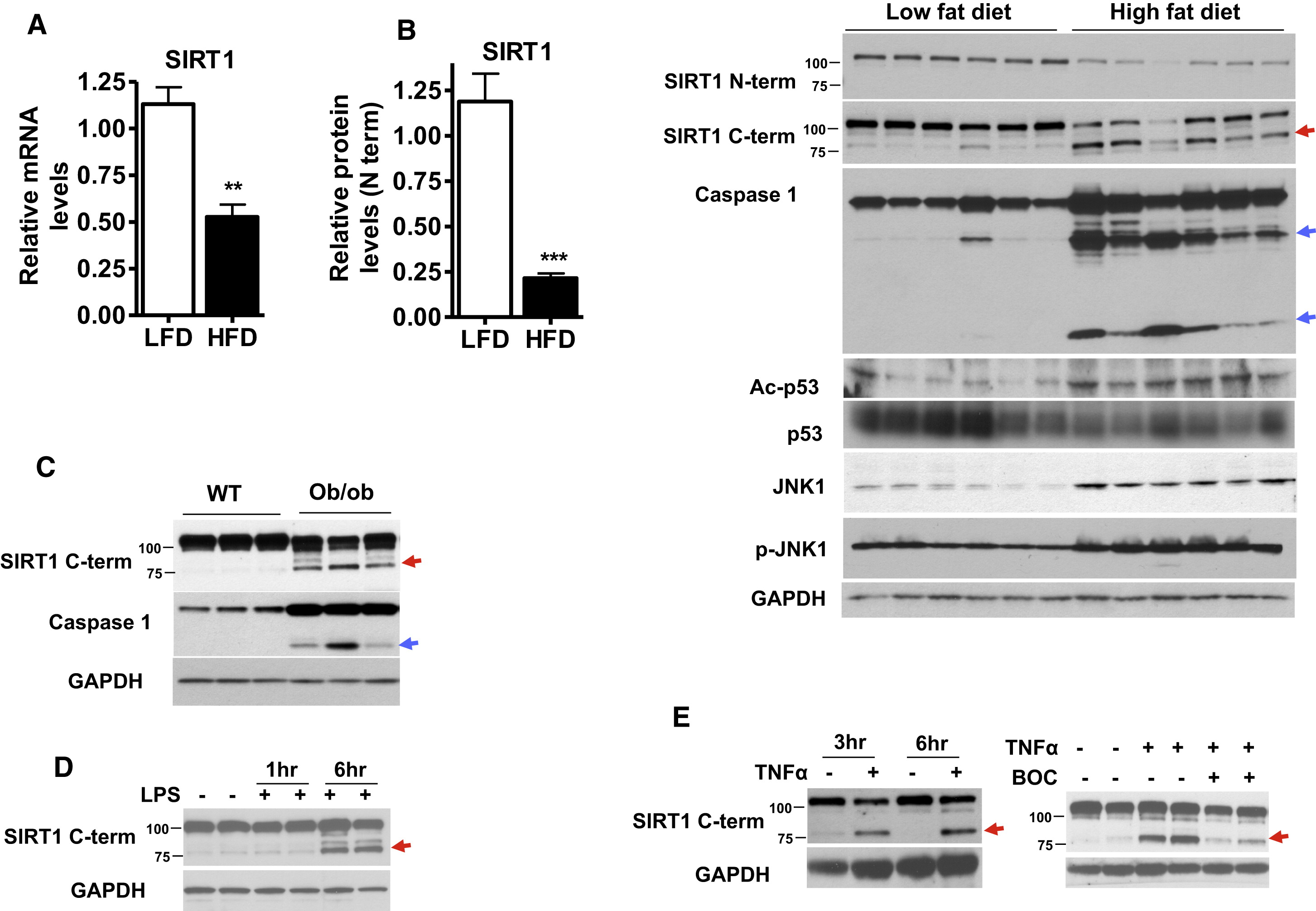 High Fatt Triggers Inflammation Induced Cleavage Of Sirt1 In Adipose Tissue To Promote