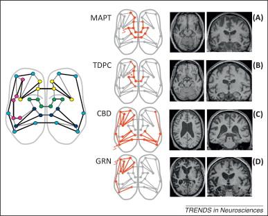 Molecular nexopathies: a new paradigm of neurodegenerative