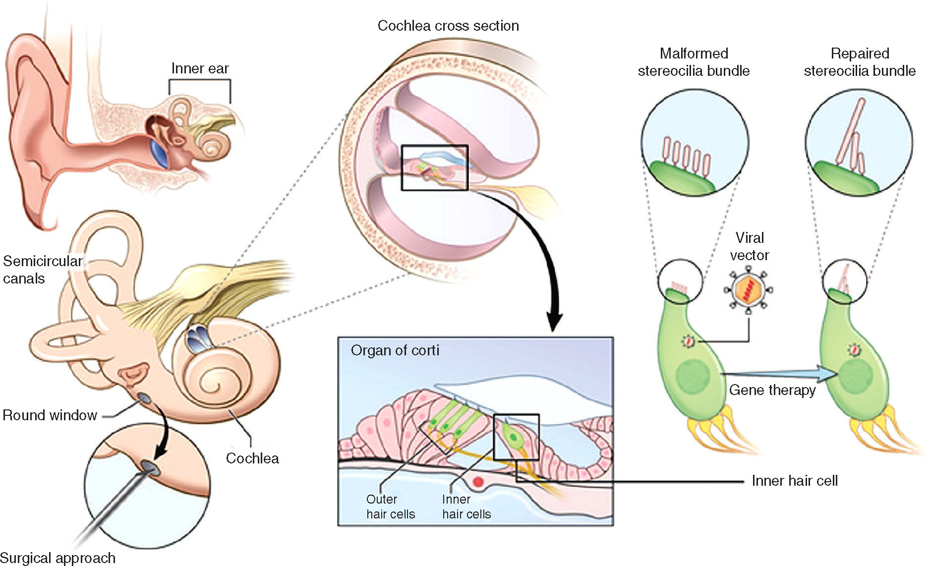 Hairs Ear Diagram Labeled