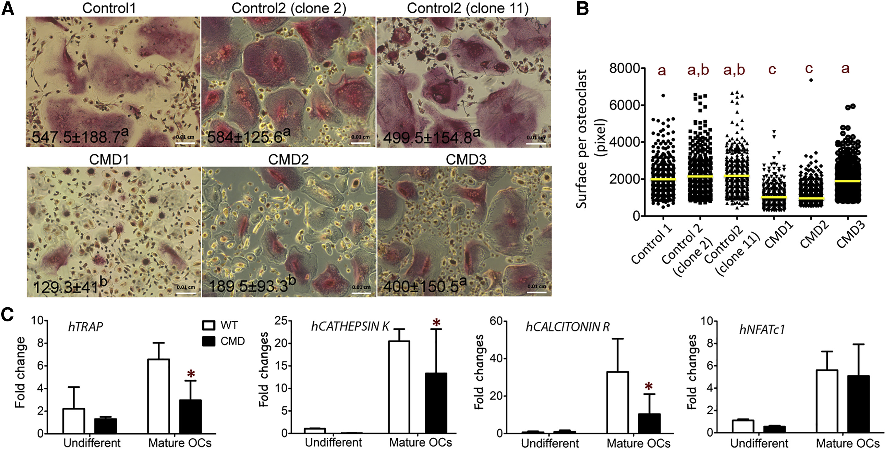Craniometaphyseal Dysplasia Mutations In Ankh Negatively Affect Human Induced Pluripotent Stem