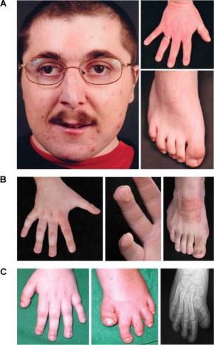 Geic Heterogeneity in RubinsteinTaybi Syndrome