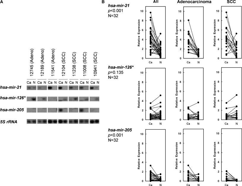 Unique microRNA molecular profiles in lung cancer