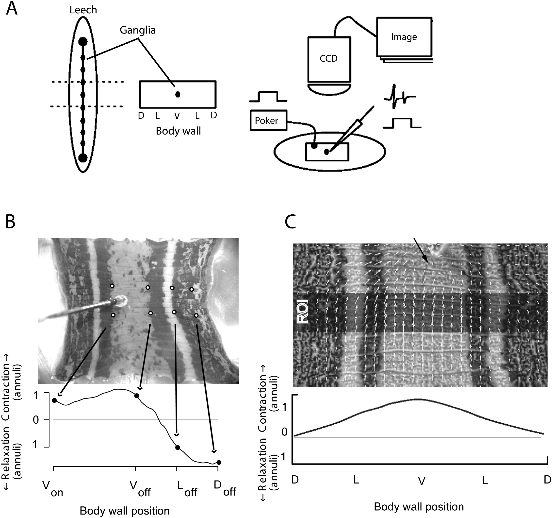 Widespread Inhibition Proportional To Excitation Controls