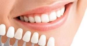 10 cosas que debes saber sobre el blanqueamiento dental