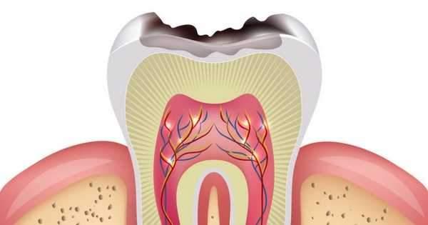 Resultado de imagen de imagenes caries dental