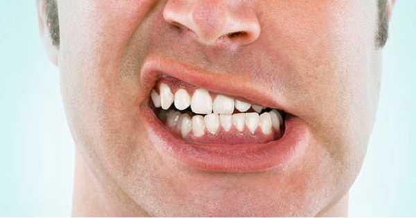 4 factores que dañan tus dientes