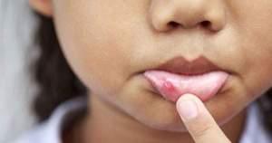 ¿A qué se deben las úlceras bucales?