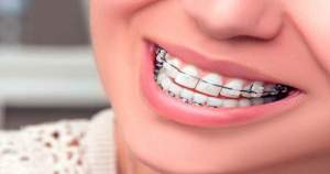 Algunas razones por las que debes hacerte ortodoncia