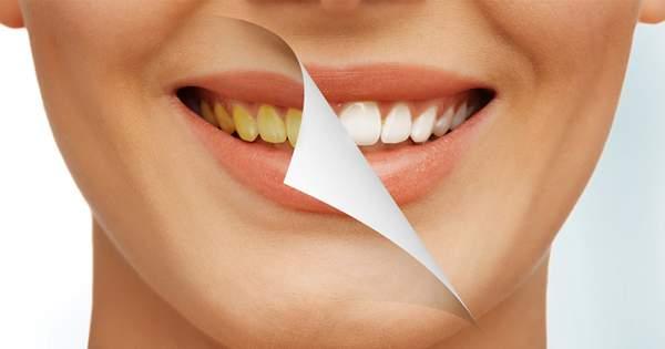 Conoce el blanqueamiento dental Zoom