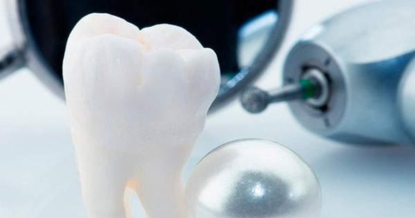 Conoce los cuidados antes y después de una extracción dental (exodoncia)