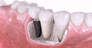 Consejos para cuidar los implantes dentales