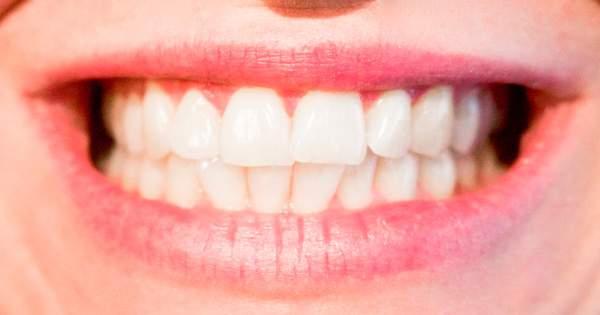 Consejos para elegir la ortodoncia que te conviene