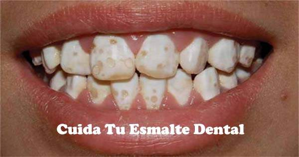 Cuida tu esmalte dental