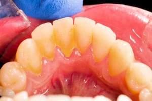 Diferencias entre la placa y el sarro dental