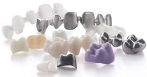 ¿Eres alérgico a los materiales dentales? Ven y entérate
