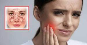 ¿Es posible que la sinusitis genere dolor dental?